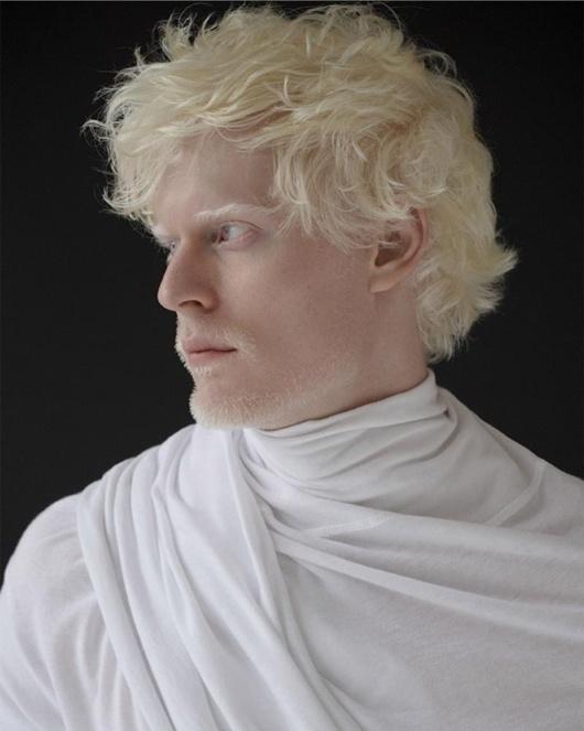 An albino human. Source: Pinterest