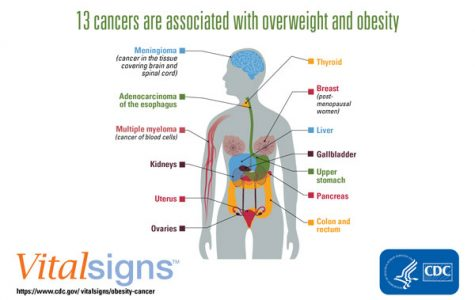 Obesity And How It Affects Us Today